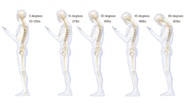 bad posture can affect your neck back & spinal alignment