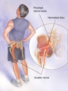 Illustration of sciatica pain with man holding his back.