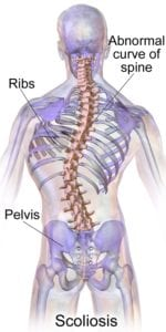 Diagram of scoliosis in the spine.