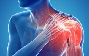 Causes and Treatment for Pinched Nerves in Shoulder | Crist