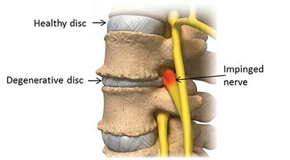 Textbook illustration of degenerative disc disease.