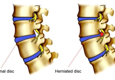 text book picture comparison of normal disc vs a herniated disc pushing on nerve and causing back pain