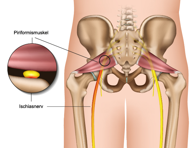an internal view of the piriformis muscle