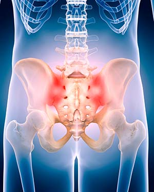 3D illustration of sacroiliac joint pain in the hips