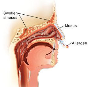 anatomical illustrated picture of your sinuses and their reaction to allergies